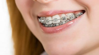 Photo of 6 Common Misconceptions About Kids and Braces