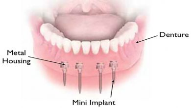 Photo of Which Metal Alloy Is Better for Denture Implants in Brisbane?