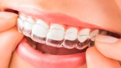 Photo of Best Tips for New Invisalign Users