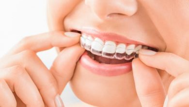 Photo of Are Invisalign Braces Worth the Money? How does It work?